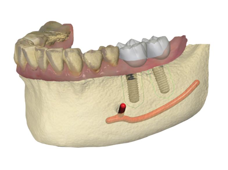 Implant Planner